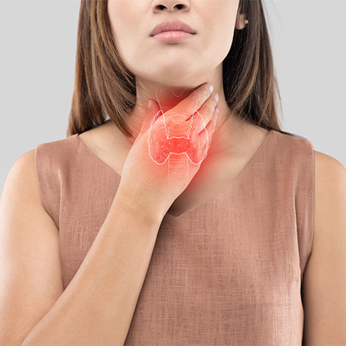 tiroide di hashimoto